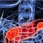 Pancreatic Cancer Alliance