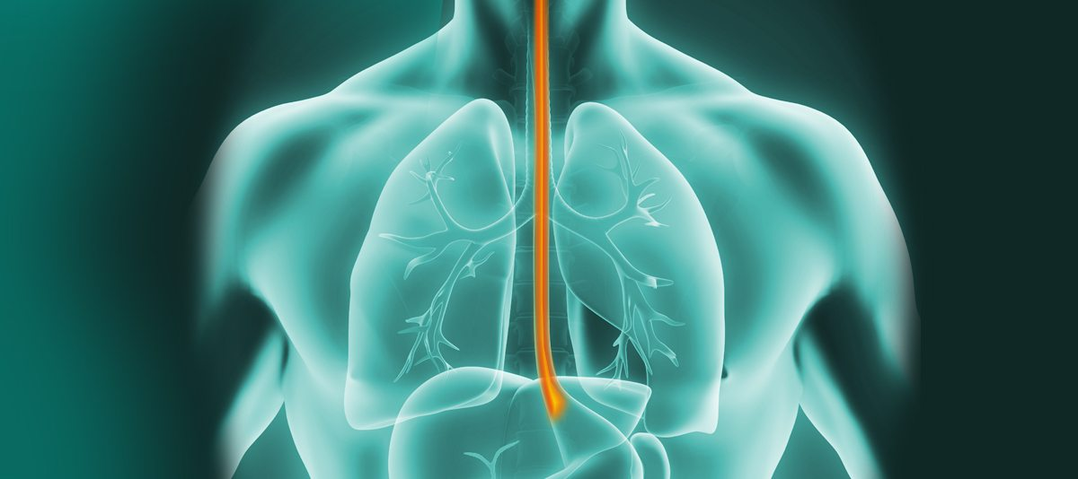 Oesophageal Cancer Gi Cancer