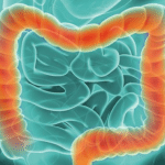 How trials have changed treatment for advanced bowel cancer