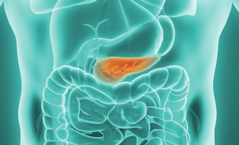pancreas - GI Cancer