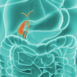 What is cholangiocarcinoma?